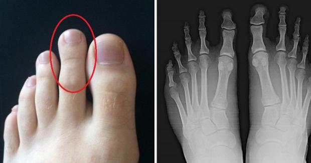 Pogledajte drugi prst na vašoj nozi: Ako je ove veličine onda ste veoma posebni