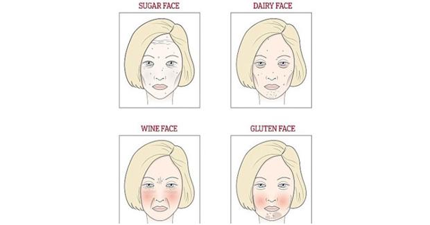 Lice otkriva što vam smeta – šećer, vino, mlijeko ili gluten?