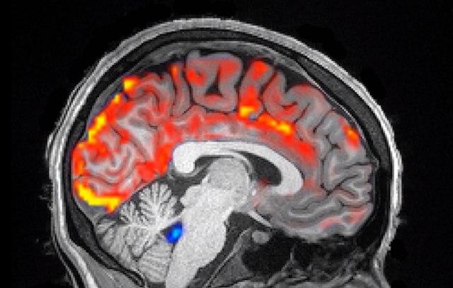 Pogledajte kako izgleda pravo ispiranje mozga?