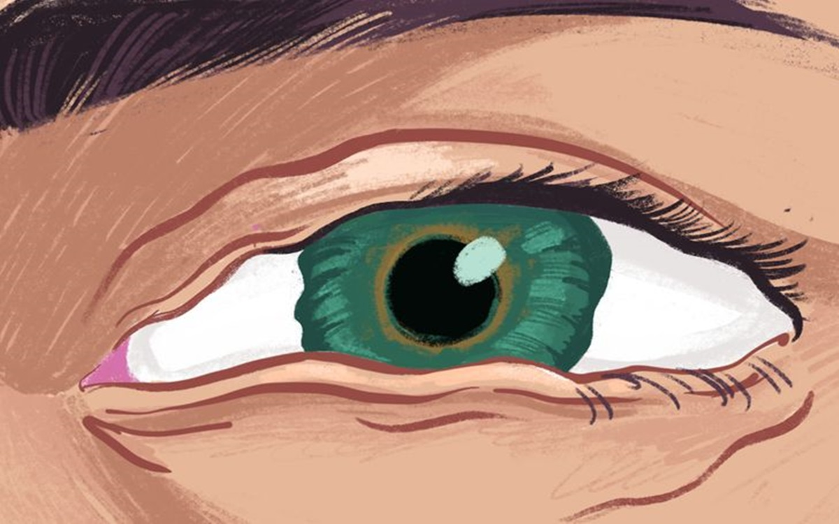 Zašto nam oko samo počne trzati i kako to spriječiti?